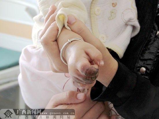 乔乔的小手被烧伤了,食指和中指受伤最严重;小指上则长了一个大水泡。