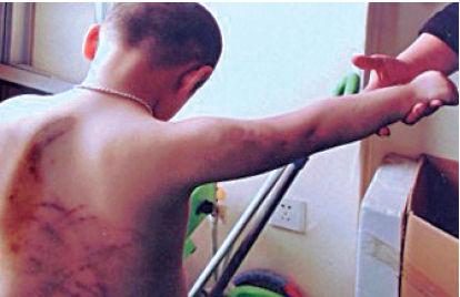 4岁男童尿床遭17岁幼师暴打遍体鳞伤(图)