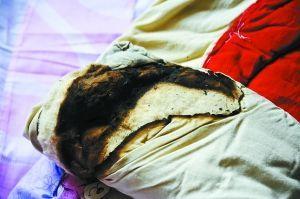 被烧坏的衣物。兰州晨报记者 陈若梦 摄