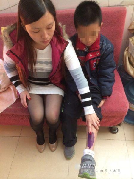 周女士指着孩子受伤的小腿。桂林晚报记者 蒋璇 摄