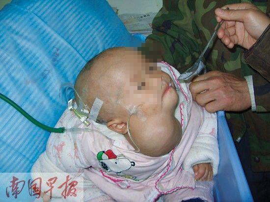 2010年12月12日,被肿瘤压迫气管以致奄奄一息的丹露,依然大口地吞咽白粥。