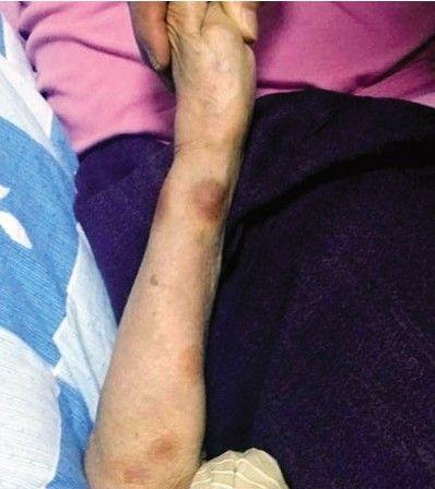 老人手臂上有明显瘀伤。南国早报记者 陈维 摄