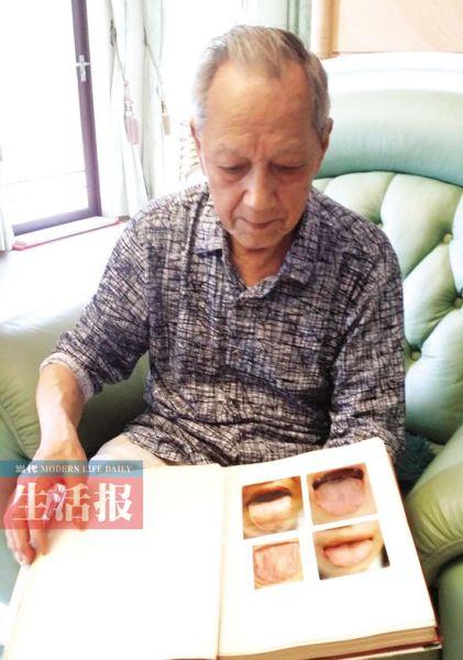 黄老撰写的18万字的《舌象诊断学》