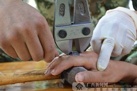 阿涛手指局部发黑肿胀。陈志浩 摄