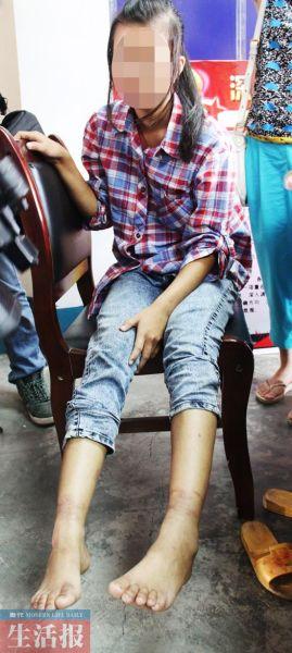 小梅的手腕和脚踝上部满是被铁链锁后的伤痕。图片来源:当代生活报