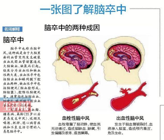 一张图了解脑卒中。图片来源:当代生活报