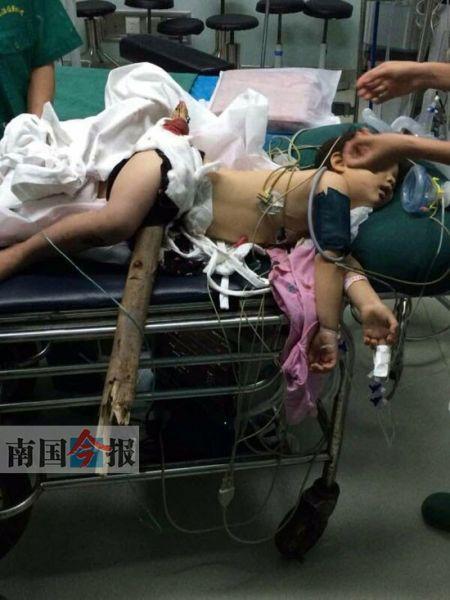 女孩被送到工人医院时,木头仍留在其体内,情景十分令人揪心。通讯员 杨小辉 摄