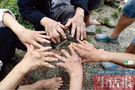 村民的手已经严重变形
